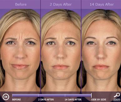 botox-before-after-1