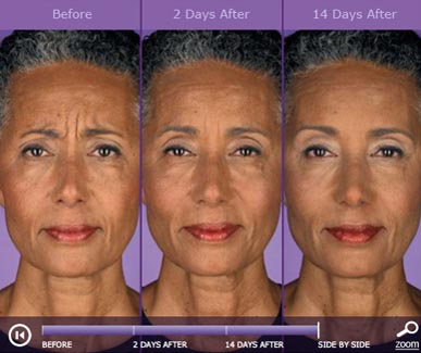 botox-before-and-after-3