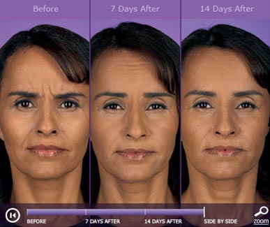 botox-before-and-after-4
