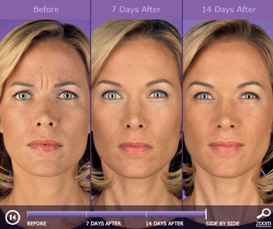 botox-before-and-after-6