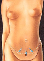 drawing_abdominoplasty_excess_skin_amount_removal