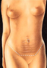 drawing_abdominoplasty_incisions