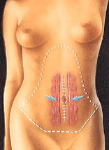 drawing_abdominoplasty_tuck_rectus_muscle_fascia_tightening