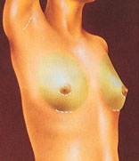 drawing_breast_implant_incisions