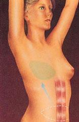 drawing_breast_reconstruction_abdomen_flap