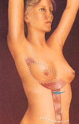 drawing_breast_reconstruction_abdomen_flap_after