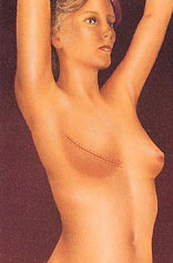 drawing_breast_reconstruction_after_implant