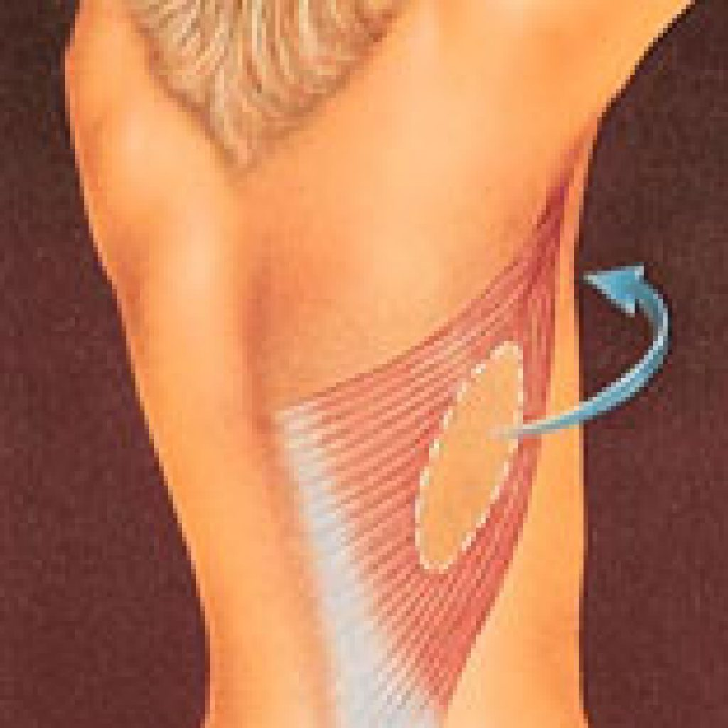 drawing_breast_reconstruction_back_flap