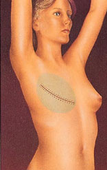 drawing_breast_reconstruction_mastectomy_scar