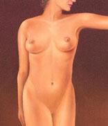 drawing_liposcution_results_of abdomen