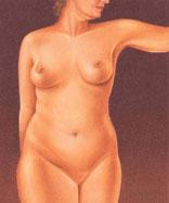 drawing_liposuction_cover_women