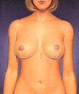 drawing_reduction_breast_closure_completed