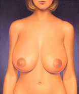 drawing_reduction_breast_large_hypertophy_before_image